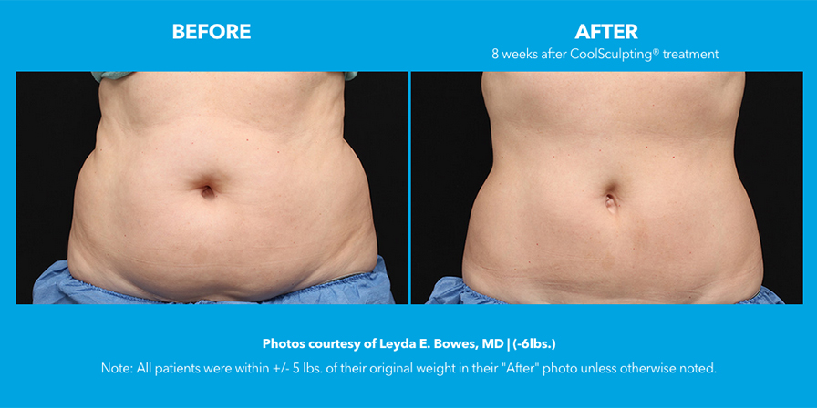 CoolSculpting® in Yucaipa thumbnail image