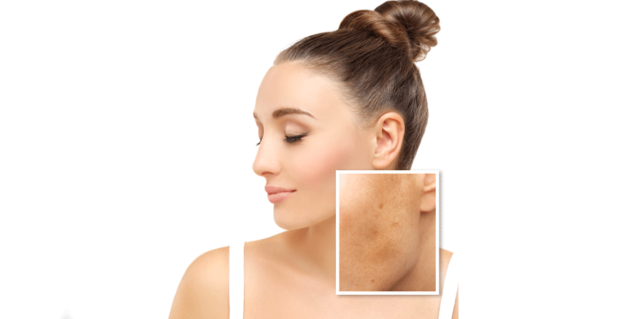 Natural  Remedies for Lightening Age Spots thumbnail image